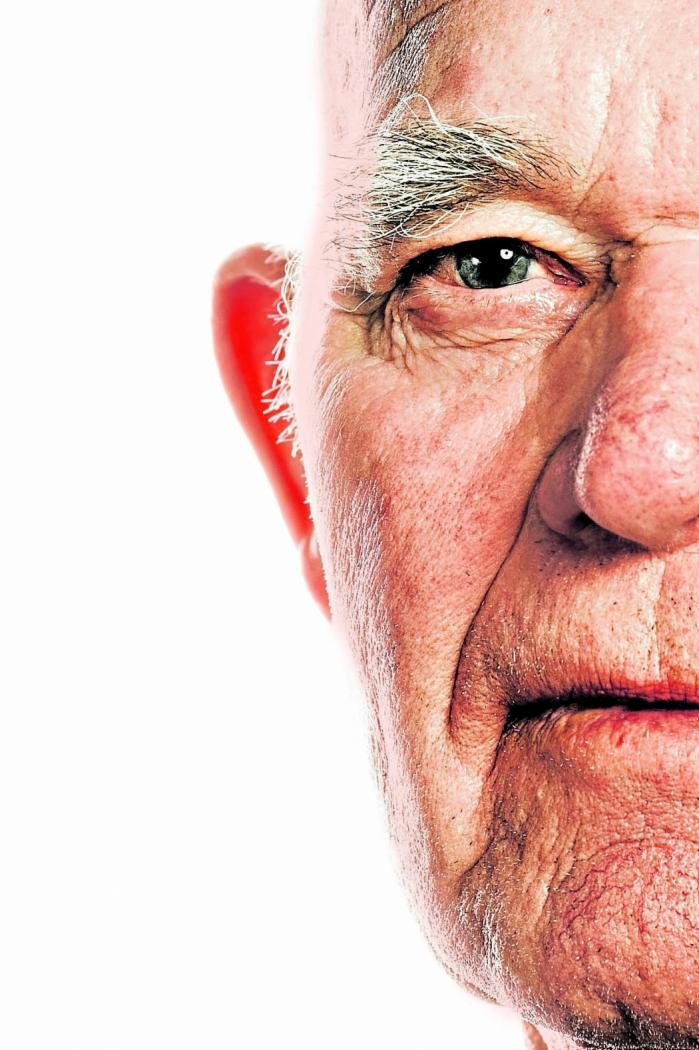 A demência é uma das principais causas de incapacidade e dependência