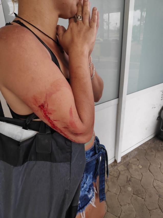 Mãe do estudante foi ferida com uma facada no braço. Crédito: Isaac Ribeiro