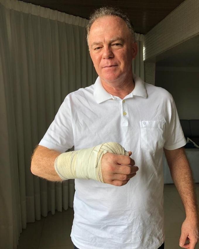 Resultado de imagem para imagens Governador do ES cai em partida de futebol e faz cirurgia na mão